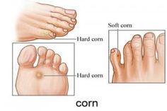 -corns-