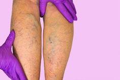 vechi în tratamentul varicozei