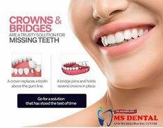 MS Dental Dental Crown Procedure, Dental Bonding, Porcelain Crowns, Dental Hospital, Affordable Dental, Missing Teeth, Dental Art, Smile Design, Dental Procedures