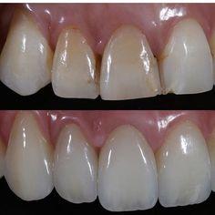 @hirataestheticdentistry #restorativedentistry#veneers#dentist#dentistry#estheticdentistry#composites#3M#ivoclair#tokuyama#shofo#clinic#invasiline#surgery#dentalsurgery#dentalcollege#sirona#periodontics#prosthodontics#endodontics#pedodontist#odontologia#odonto#dentalsurgery#gingivectomy#dentalphotography#clinics#doctors#medicine#biology#art#medicali