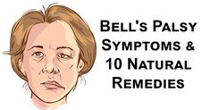 Bell's palsy is a temporary form of facial paralysis caused by damage or trauma to the facial nerves. The condition disrupts the function of the facial nerve, which interrupts the messages that the brain sends to the facial muscles. The result is facial weakness or paralysis. (1) Bell's palsy natural treatments can help strengthen the …