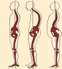 Wonderful Scoliosis Tips And Techniques For scoliosis exercises muscles Scoliosis Exercises, Posture Exercises, Psoas Iliaque, Shoulder Problem, Middle Back Pain, Alexander Technique, Psoas Release, Tight Hamstrings, Tight Hip Flexors