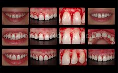 Dentaltown - Improving a smile with periodontal plastic surgery by periodontist Dott. Roberto Rossi DDS, MScD. Dentaltown Message Board Cosmetic Dentistry http://www.dentaltown.com/MessageBoard/thread.aspx?s=2&f=101&t=252722.   A 25 years young pretty lady was referred to the office for treatment of excessive gingival display. In similar cases the protocol of treatment involves:  1. Case study with intra-oral and extra oral pictures 2. Full mouth status of rx 3. Video of the smile dynamics.