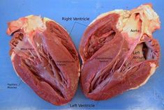 A beautifully labeled image of the heart!