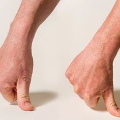 Find Ways To Get Arthritis Pain Relief. Unfortunately, millions of people annually have to deal with arthritis, whether it be rheumatoid or osteoarthritis. Arthritis can be overwhelming, but this Arthritis Hands, Yoga For Arthritis, Arthritis Exercises, Natural Remedies For Arthritis, Arthritis Pain Relief, Types Of Arthritis, Arthritis Symptoms, Arthritis Treatment, Arthritis Diet