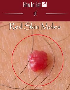 how to get rid of red moles on chest