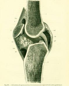 1897 Articulation du genou Planche Originale Anatomie Chirurgie P. Tillaux 19ème siècle de la boutique sofrenchvintage sur Etsy