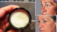 Tengo 58 años y pude eliminar más del 90% las arrugas y manchas de mí, rostro y cuello aplicando este remedio casero. Si quieres ver resultados prueba esta crema natural y mira cómo te va a los 7 días de usarla ¡Todos te pedirán la formula!