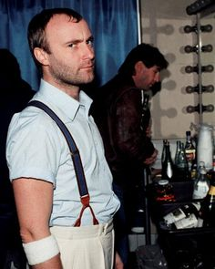 Phil Collins on Genesis ' Mama tour 1983.A very British baldness pattern I'd say (I've come across many British men sharing it tho).