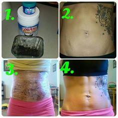 Will bioidentical estrogen help me lose weight