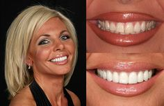 Discolored teeth due to stains from tetracycline or other drugs, excessive fluoride or a large resin filling that caused discoloration of the tooth.