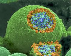 This microscopic view is of a nerve broken open to reveal vesicles with chemicals used to pass messages.