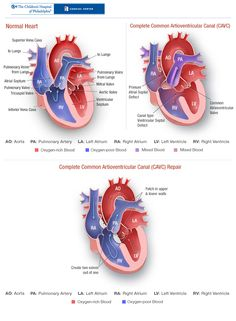 Complete Common Atrioventricular Canal (CAVC). This is what Jasper has.