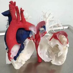 Medical #3Dprinting has been skyrocketing & now includes these 2 landmark pediatric heart surgeries for the win!