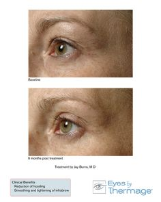 Before and After Eyes by Thermage