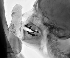 Samlag Röntgen