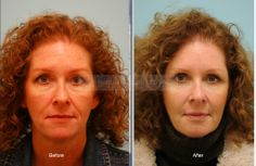 Primary Facial Fat Transfer Photo Gallery and related information, provided by Dr. Lam of the Lam Facial Plastic Surgery Center in Dallas, TX Fat Transfer, Facial Rejuvenation, Surgery Center, Plastic Surgery, 5 Years, Recovery, Photo Galleries, Watch, Photos