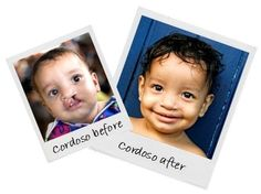 Cordoso from Brazil before and after cleft lip surgery. :) What a sweet new smile! http://www.operationsmile.org