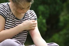 Kristen Bruno provides tips on how to deal with mosquito bites. Learn ways to avoid mosquitos and which mosquito repellants offer the best protection. Ant Bites, Insect Bites, Tick Bite Treatment, Black Fly Bites, Remedies For Mosquito Bites, Bites And Stings, Natural Mosquito Repellant, Skin Rash, Citronella