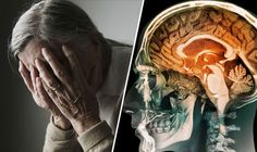 What does Alzheimers actually do to the brain and body? #alzheimers