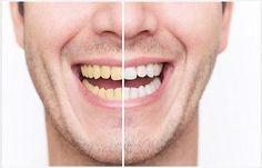 blanqueamiento dental x-treme white (blanco al extremo)  #Blanqueamiento, #Dental, #Treme, #White, #Blanco, #Extremo