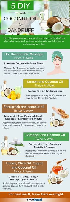 5 DIY Effective Ways to Use Coconut Oil for Dandruff. Coconut oil is the best Remedy to treat all Hair problems. Find out how to use coconut oil for dandruff.