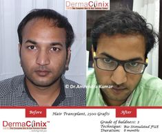 DermaClinix is the best hair transplant clinic in Delhi.   We have the best team of doctors trained at AIIMS, PGI Chandigarh and Safdarjung New Delhi, India. Our hair transplant Surgeons are Member of ISHRS. Done more than 3000 hair transplant surgeries including politicians and celebrities