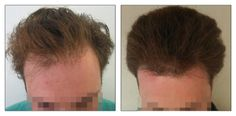 FUE Hair Transplant - 2 sessions - 1000 grafts