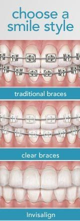 You always have a choice!  #Braces #Invisalign #ClearBraces #MetalMouth #Ortho #Orthodontist #Orthodontics