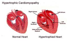 This image depicts myocyte hypertrophy with myocyte disarray, and interstitial fibrosis which are characteristic features of hypertrophic cardiomyopathy (HCM).  HCM classically presents with sudden death or arrhythmia in young athletes.  While most cases of HCM have asymmetrical septal thickening, approximately 15% of cases present with concentric thickening of the left ventricle.  Nearly all cases have been found to involve mutations of genes encoding parts of the cardiac sarcomere with…