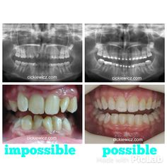 Effects after orthodontic treatment
