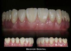 Dental Training, Dental Anatomy, Dental Technician, Cosmetic Dentistry, Teeth, Creativity, Smile, Album, Oral Health