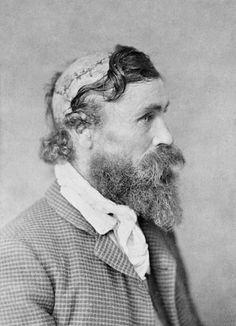 Robert McGee, scalped as a child by a Sioux Chief. circa 1890. [2245x3103] Check this blog!