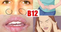 Niedobór witaminy B12 niebezpieczny dla zdrowia.