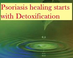 Sometimes back, I shared a picture on social networking web portal emphasizing importance of detoxification of body for Psoriasis healing and that post of mine was bombarded with very intense comments from some people (with psoriasis) because for them Psoriasis is...Read more