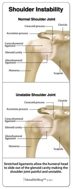 Shoulder instability often results from an injury to the glenohumeral joint. #dislocatedshoulder