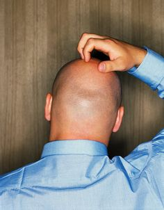 Bald Man Scratching His Head