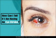 How Can I Tell If I Am Having An Eye Stroke? Blood Vessel In Eye, Blood Vessels, Eye Stroke, Eye Pain, Cardiovascular Disease, High Cholesterol, I Can, Canning