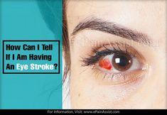 How Can I Tell If I Am Having An Eye Stroke? Eye Stroke, Eye Pain, Brain And Heart, Cardiovascular Disease, High Cholesterol, Blood Vessels, I Can, Canning