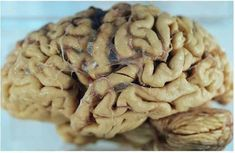 Our Parkinson's Place: Researchers Studying Drug's Potential to Prevent A... #TreatingDementia