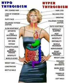 Symptoms Of Thyroid Disease The thyroid gland is responsible for the metabolism of every cell in the body. Whenever the thyroid gland is overactive or underactive, signs and symptoms of thyroid disease will occur. Thyroid Cure, Thyroid Gland, Thyroid Cancer, Thyroid Disease, Heart Disease, Autoimmune Disease, Thyroid Hormone, Thyroid Levels, Graves Disease Symptoms