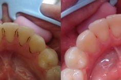 Jak vybělit zuby, bez drahého a drastického ošetření. Recept na bělení zubů. Tento recept na bělení zubů pomáhá prakticky s jakýmkoli typem onemocnění dásní, a tím, že okamžitě bělí zuby, rozpouští kameny a léčí drobné vřídky v ústech. Pomáhá při parodontopathy, zánětu dásní, černého plaku na zubech, každý stav onemocnění v ústech a zápach z… Fitness Tips, Health Fitness, Perfect Teeth, Health Advice, Organic Beauty, Face And Body, Natural Health, Health And Beauty, Macaroni And Cheese
