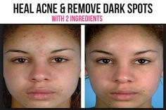 With regular use, this treatment can improve skin texture, reduce dark spots and wrinkles—but only if you continue to protect your skin from the sun. Acne Dark Spots, Lighten Dark Spots, Happy Skin, Prevent Wrinkles, Face Serum, Skin Treatments, Good Skin, Skin Care Tips, Sun