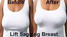 One of the best way to tighten and lift the boobs is through breast exercise and I have up to 4 exercise for sagging breast HERE in this video that will tigh. Waist Workout, Hip Workout, Breast Lift Workout, How To Widen Hips, Breast Muscle, Chest Workouts, Chest Exercises, Tummy Exercises, Hips Dips