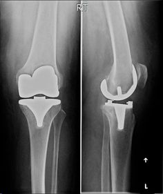 9 Best TOTAL KNEE REPLACEMENT images in 2016 | Ballet shoes
