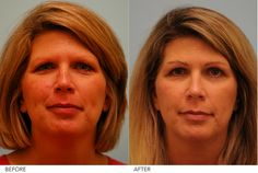 Eyebrow hair restoration represents the highest art form in the practice of delicate hair restoration. Eyebrow hair transplantation at the Lam Institute for Hair Restoration in Dallas, Texas, pays meticulous attention to technical detail combined with an artistic eye. The flat hair angle, natural curl, and flare-to-fishbone design pattern of the eyebrow are all integral to the creation of an attractive and full eyebrow contour during eyebrow hair transplant.