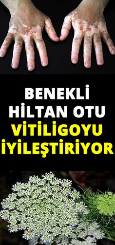 Benekli Hiltan Otu Vitiligoyu İyileştiriyor - Es Tutorial and Ideas Flu Remedies, Herbal Remedies, Health Tips, Health And Wellness, Natural Hair Shampoo, Hair Vitamins, Nutrition And Dietetics, To Loose, Medicinal Plants