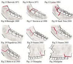 CIRUGÍA BUCAL: Incisiones para exodoncia de terceras molares impactados | Ovi Dental