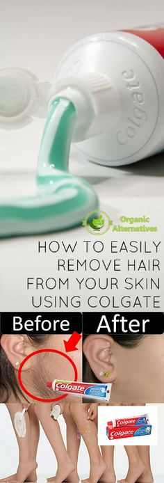 can toothpaste remove facial hair, how to remove unwanted hair permanently, what does toothpaste do to your hair, how to remove unwanted hair from face permanently, colgate se hair remove, permanent hair removal, hair removal hacks, baking soda hair remov