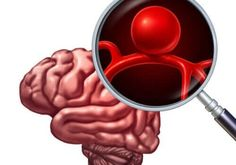 10 out of every may suffer from a intracranial aneurysm in their lives. Although it's asymptomatic, this condition has some risk factors. Arthritis, Glasgow, Circle Of Willis, Brain Aneurysm, What Happened To Us, Latest Discoveries, Biochemistry, Neuroscience, Asmr